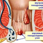 Проверенные методы лечения наружного геморроя