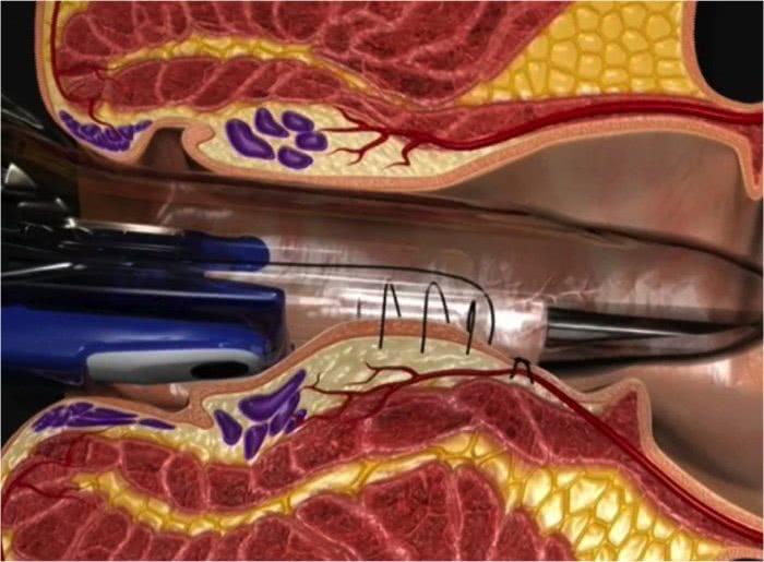 Трансанальное лигирование геморроидальных артерий