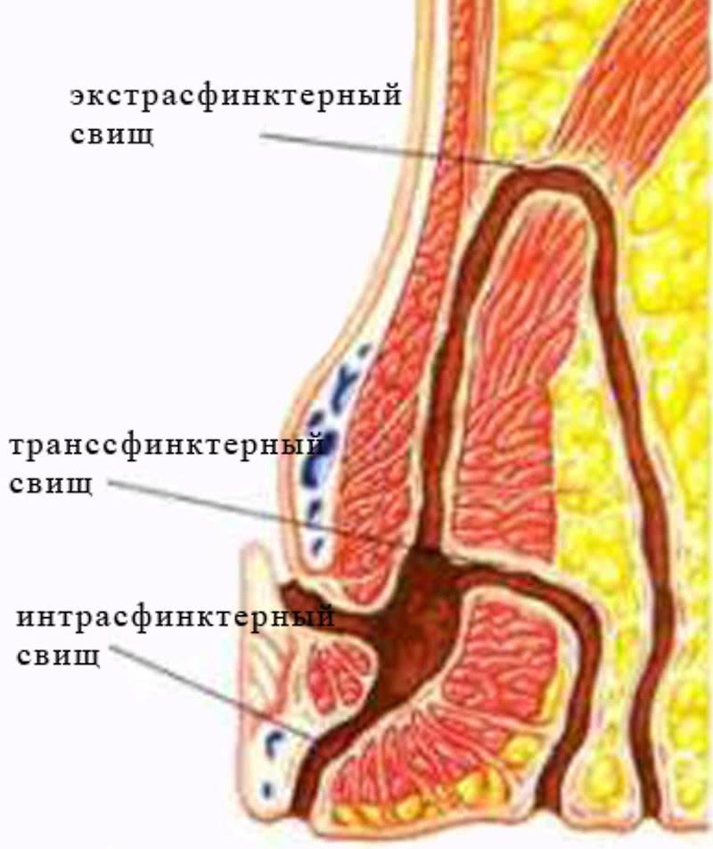 Классификация свищей относительно мышцы сфинктера