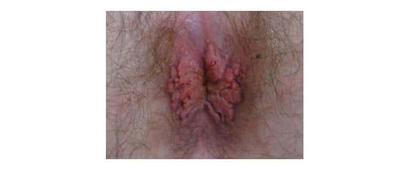 Чем залечить рану после удаления родинки