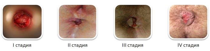 лечение глистов у детей до 1 года