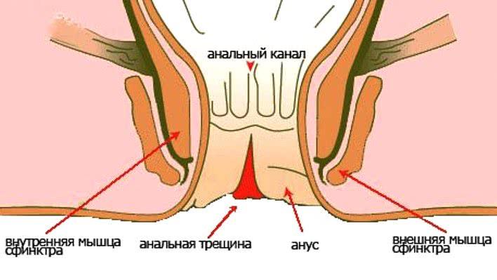 analnie-treshini-medikamenti