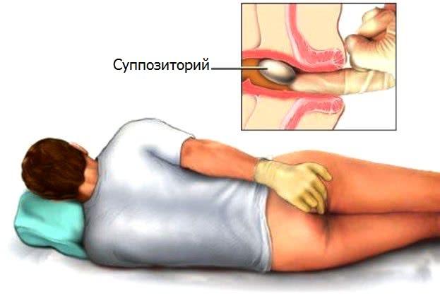 фото и нормальное анусовое отверстие