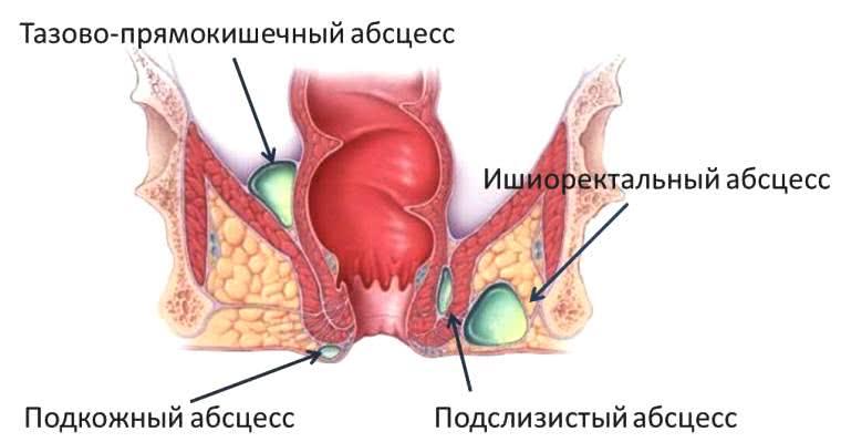 analnaya-probka-ispolzovanie
