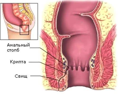 геморрой запущенный можно вылечить без операции