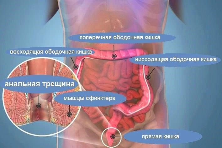Как применяют ихтиоловую мазь при парапроктите