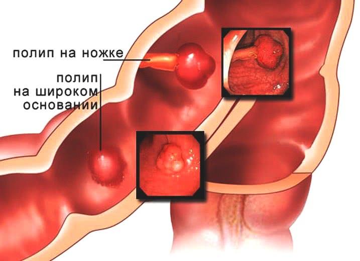 Полипы прямой кишки: доброкачественные опухоли