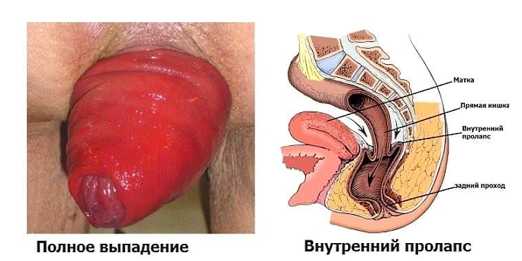 Пролапс, или выпадение, прямой кишки (фото и рисунок)