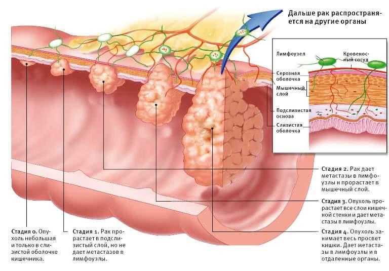 Стадии развития опухоли в кишке