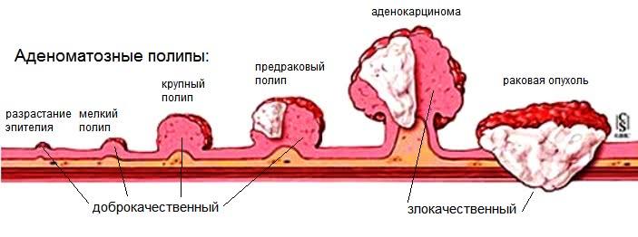 Рост полипа прямой кишки