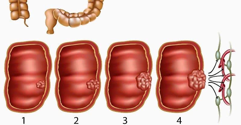 Стадии развития злокачественной опухоли