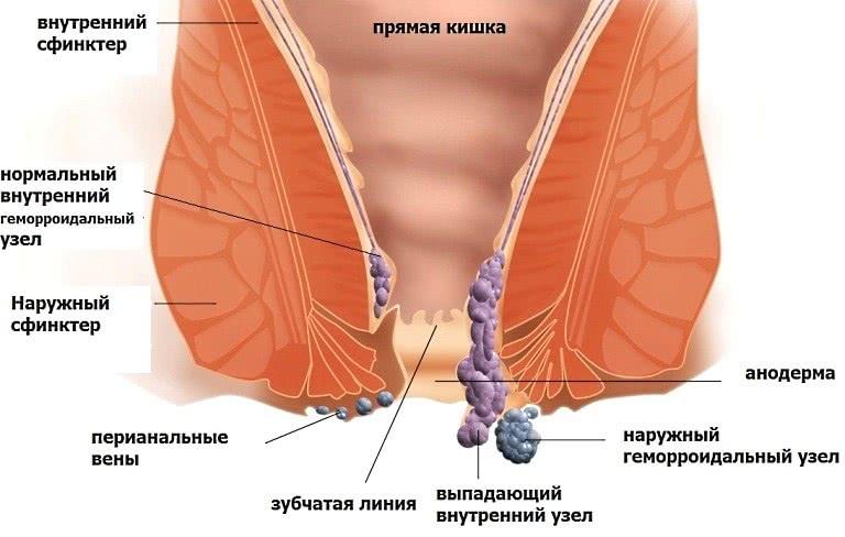 Бартолинит: причины, симптомы, лечение и последствия ...