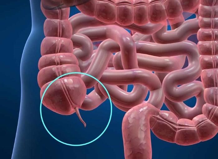 Расположение аппендикса: червеобразного отростка кишечника