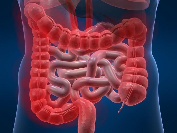Изображение кишечника, хронический колит