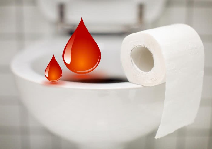 Кровотечение при геморрое, унитаз, туалетная бумага, капли крови