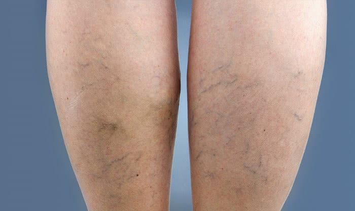 Таблетки для лечения варикоза на ногах
