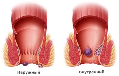 Изображение наружных и внутренних геморроидальных узлов