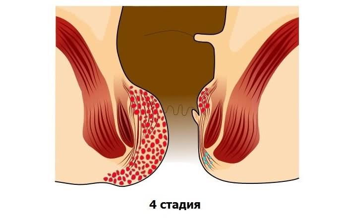 Схематичное изображение геморроя 4 стадии