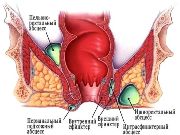 Абсцессы при осложнении воспаления узлов – парапроктите