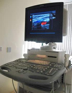 Аппаратура для УЗИ с трёхмерной реконструкцией