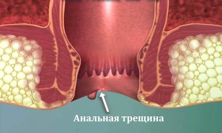 Изображение анальной трещины