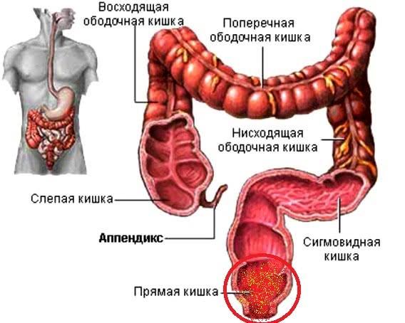 Изображение кишечника и локализации проктита