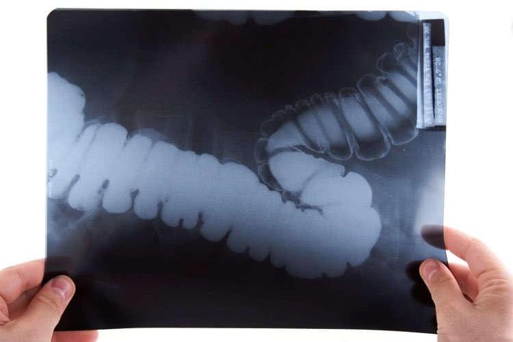 Рентгеновский снимок толстого кишечника
