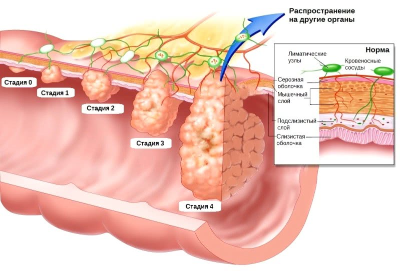 Стадии и вид рака прямой кишки