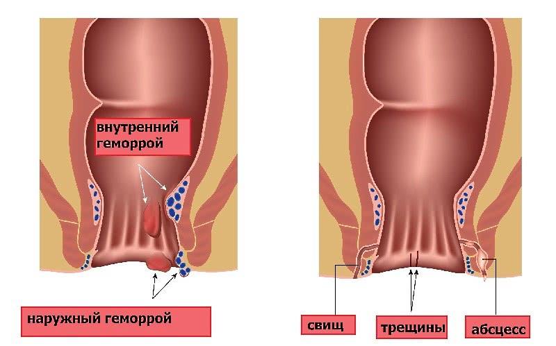 Геморрой, анальный свищ, трещина и абсцесс