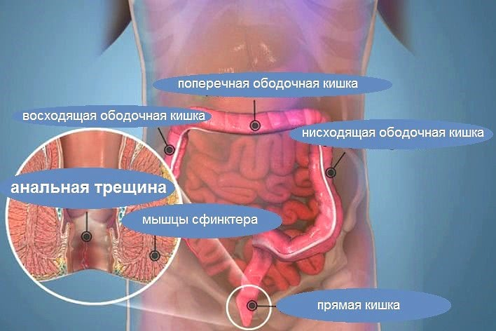 Анальная трещина и схема толстого кишечника
