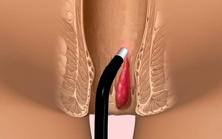 Лечение геморроя: инфракрасная коагуляция