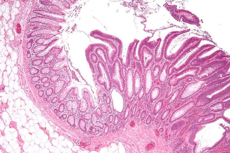 Ворсинчатая опухоль прямой кишки под микроскопом