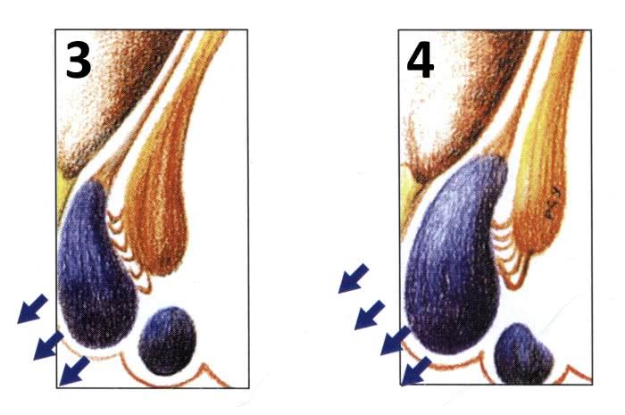 3 и 4 стадии геморроя