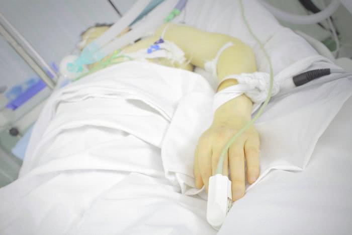 Пациент в печеночной коме