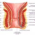 Возможные причины болезненных ощущений в области прямой кишки