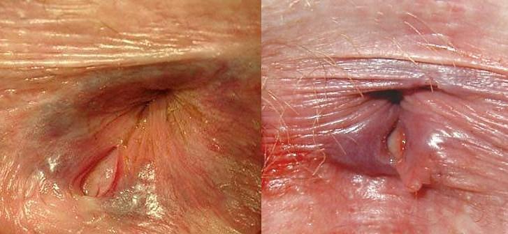 Трещины в заднем проходе: 4 причины, фото и лечение